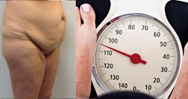 Obesità, tra Interventi sullo stomaco e Chirurgia estetica addominale